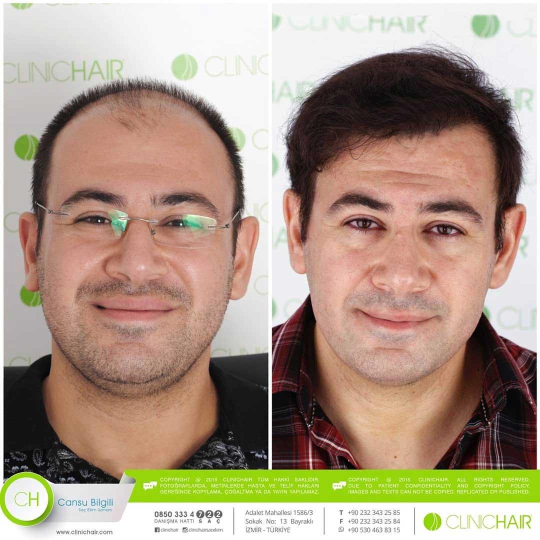 Clinichair Saç Ekimi Sonuçları 2