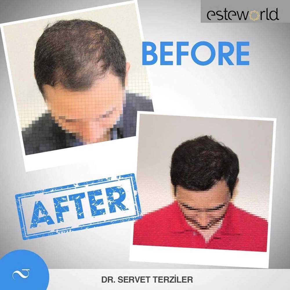 Esteworld Saç Ekimi Sonuçları 2