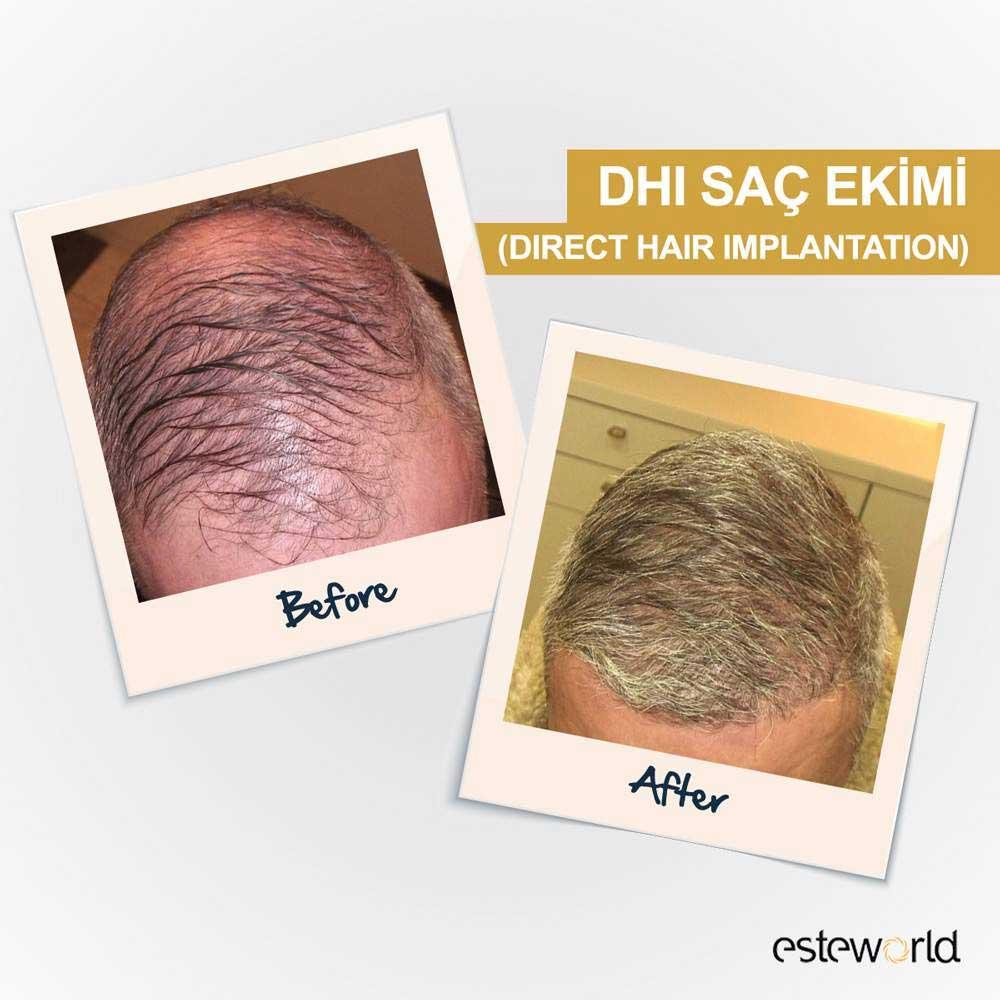Esteworld Saç Ekimi Sonuçları 3