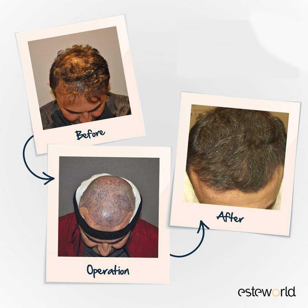 Esteworld Saç Ekimi Sonuçları 4