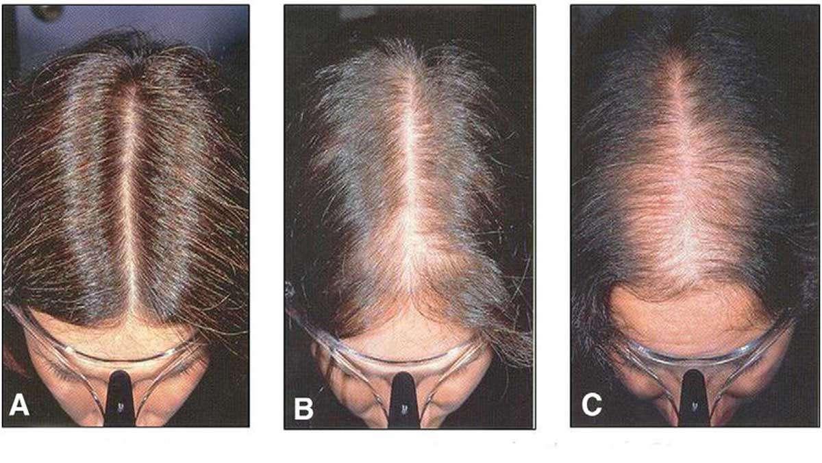 Kadınlarda Erkek Tipi Saç Dökülmesi Belirtileri Nelerdir?