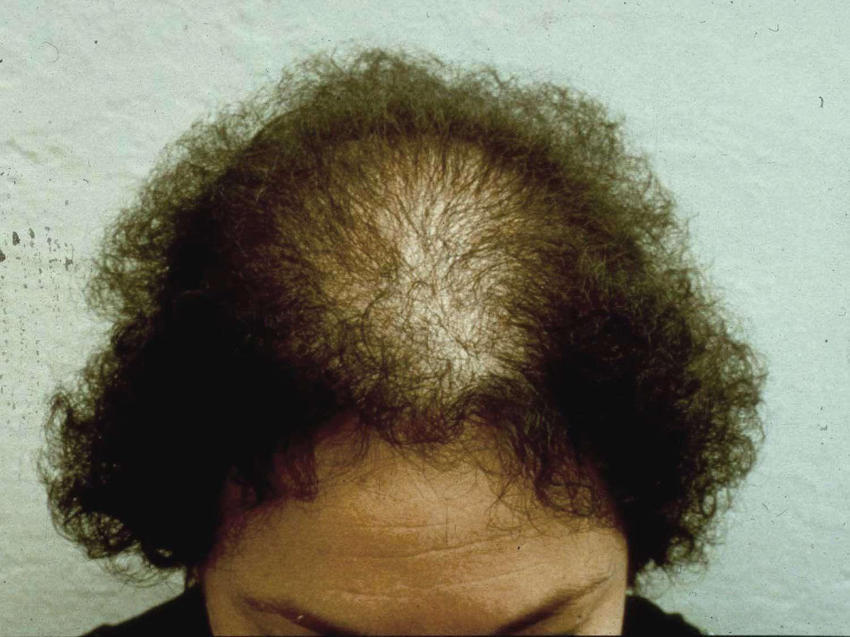 Kadınlarda Erkek Tipi Saç Dökülmesinin Özellikleri