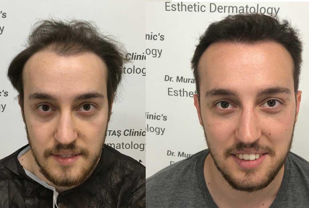 Dr. Murat Küçüktaş Saç Ekimi Sonuçları 1