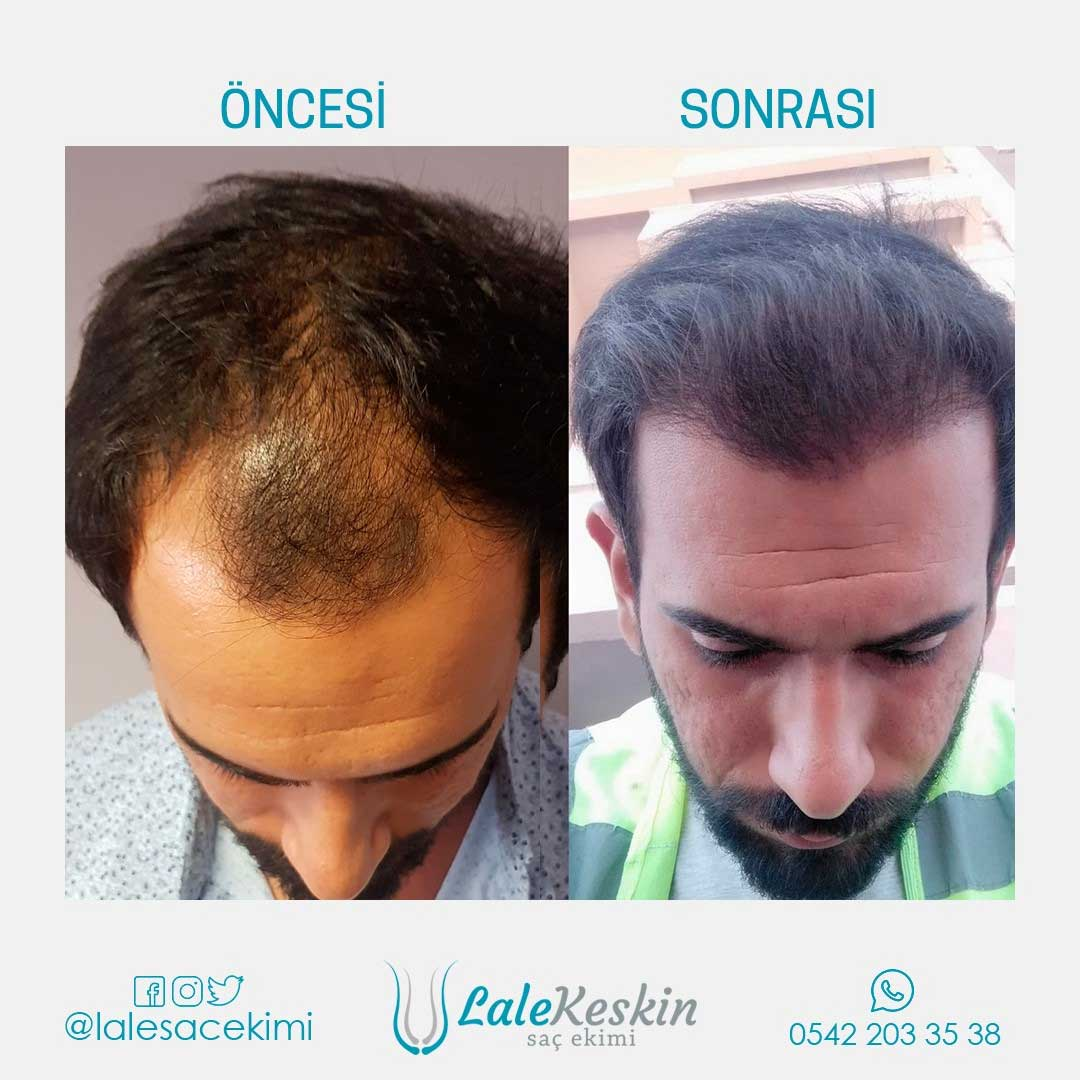 Lale Keskin Saç Ekimi Sonuçları 3