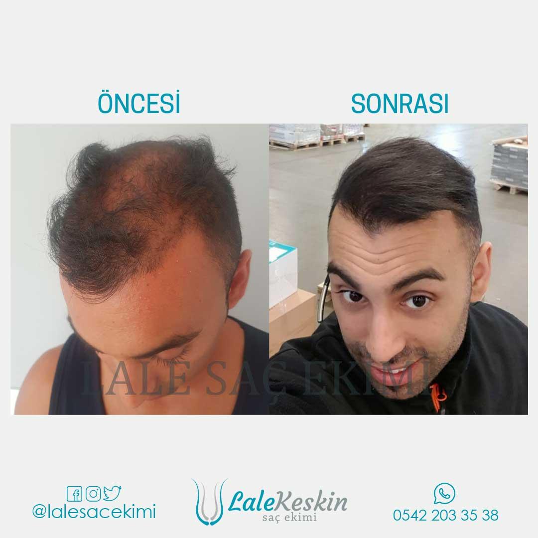 Lale Keskin Saç Ekimi Sonuçları 4