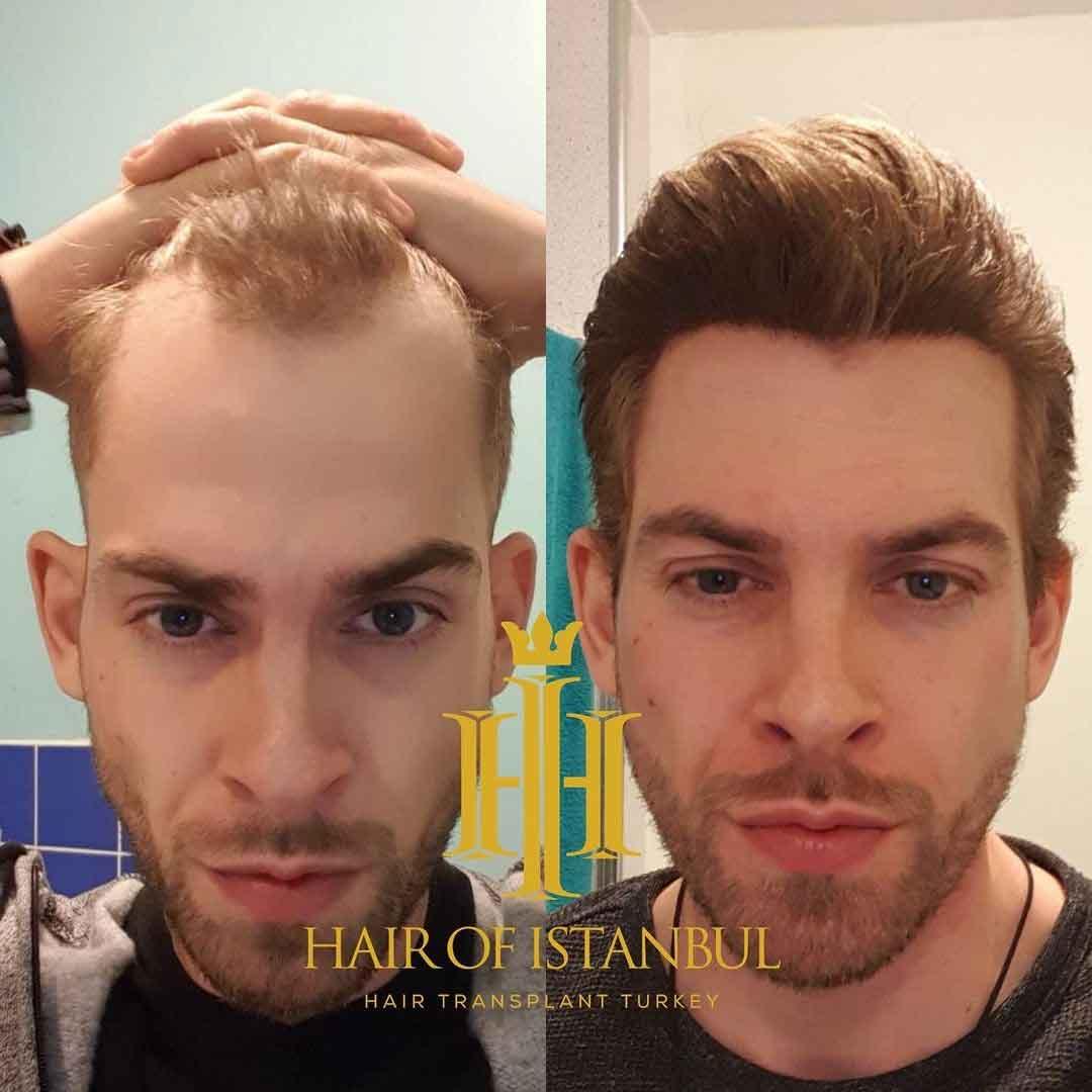 Hair of İstanbul Saç Ekimi Sonuçları 4