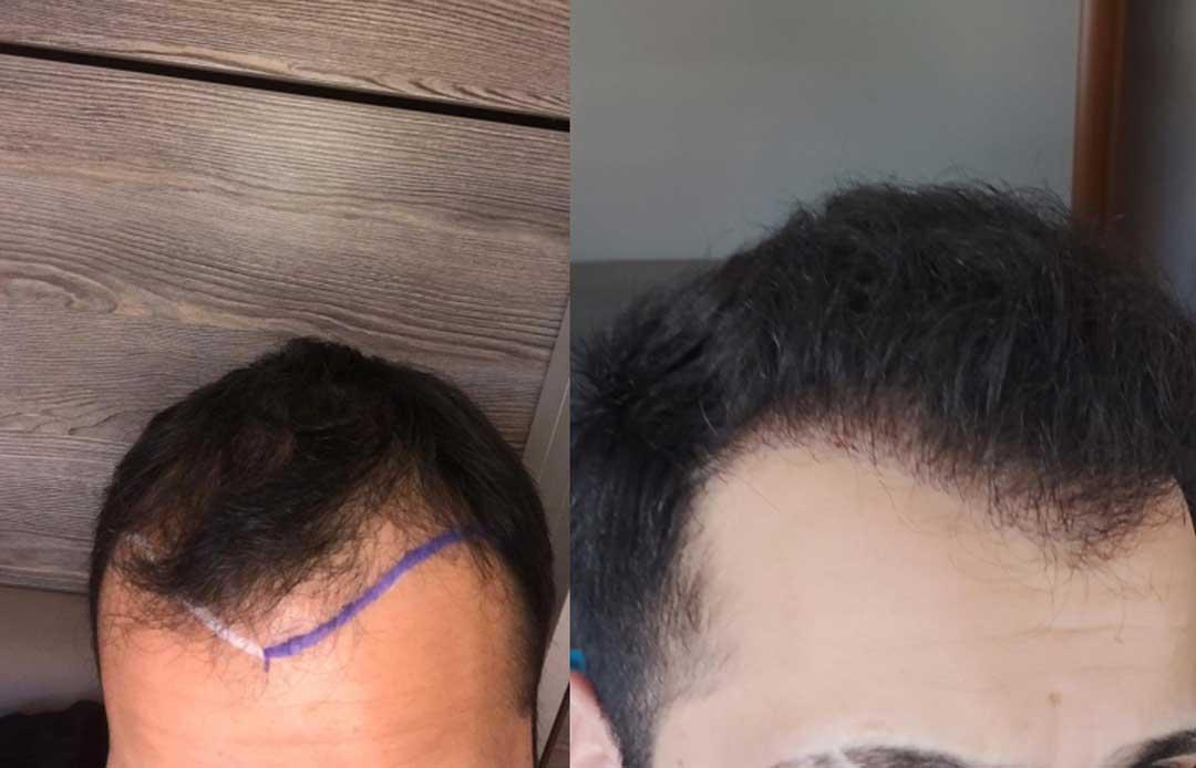 Estethica Saç Ekim Sonuçları 1
