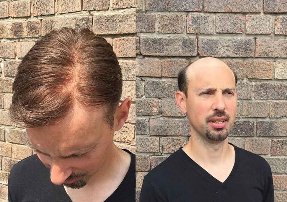 Protez Saç Ekimi Nedir