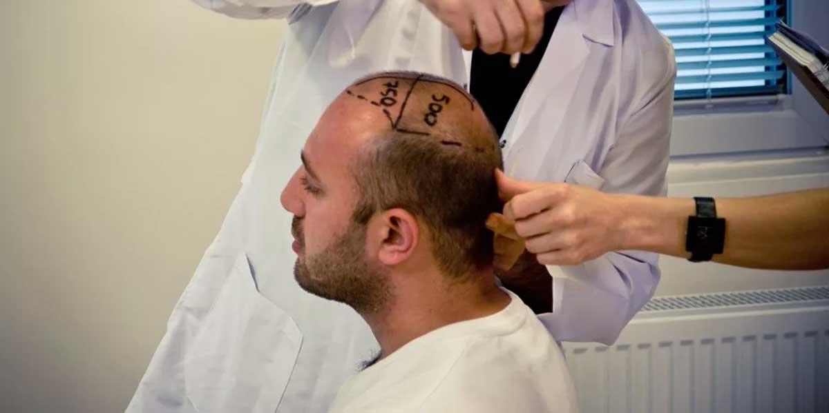 Saç Ekimi ve Saç Protezi Arasındaki Farklar Nelerdir