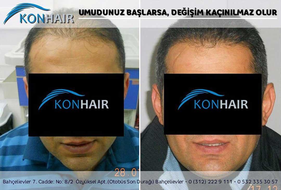 Konhair Saç Ekimi Sonuçları 1