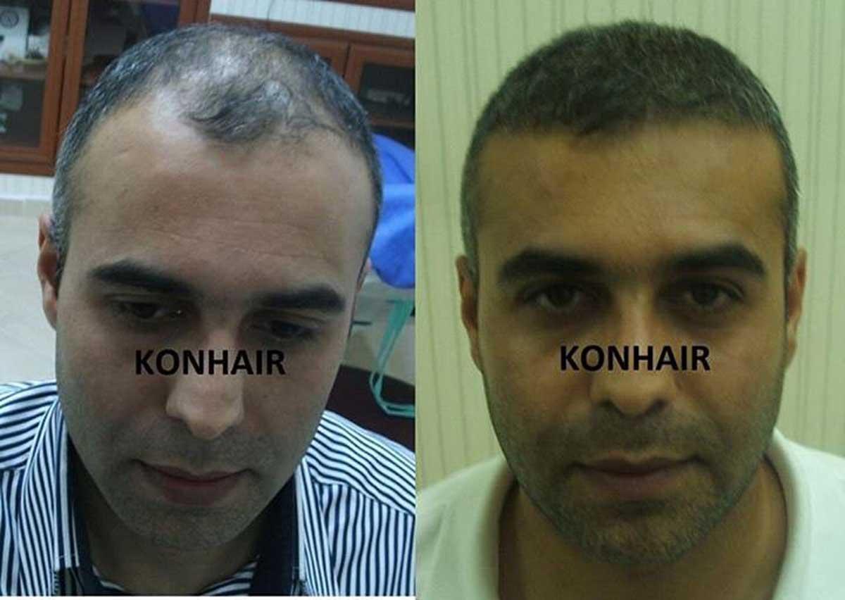Konhair Saç Ekimi Sonuçları 2