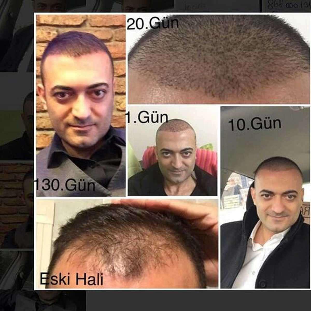 Konhair Saç Ekimi Sonuçları 4