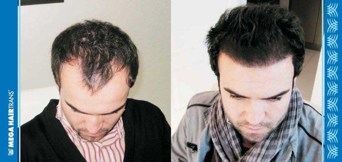 Mega Hair Trans Saç Ekimi Sonuçları 3