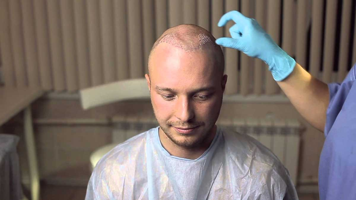 Saç Ekimi Sonrası Süreç Kısmında Dikkat Etmeniz Gerekenler