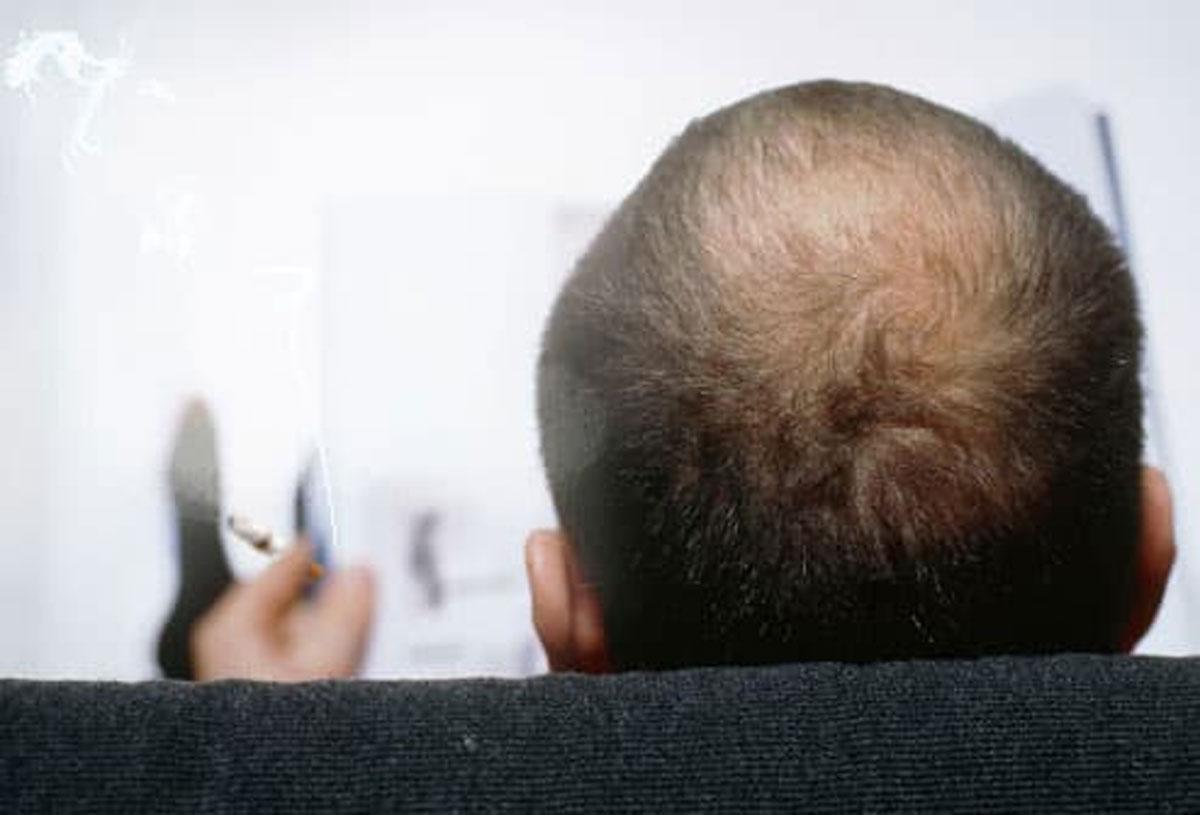 Sigara Saç Ekimini Riskli Mi Kılıyor?