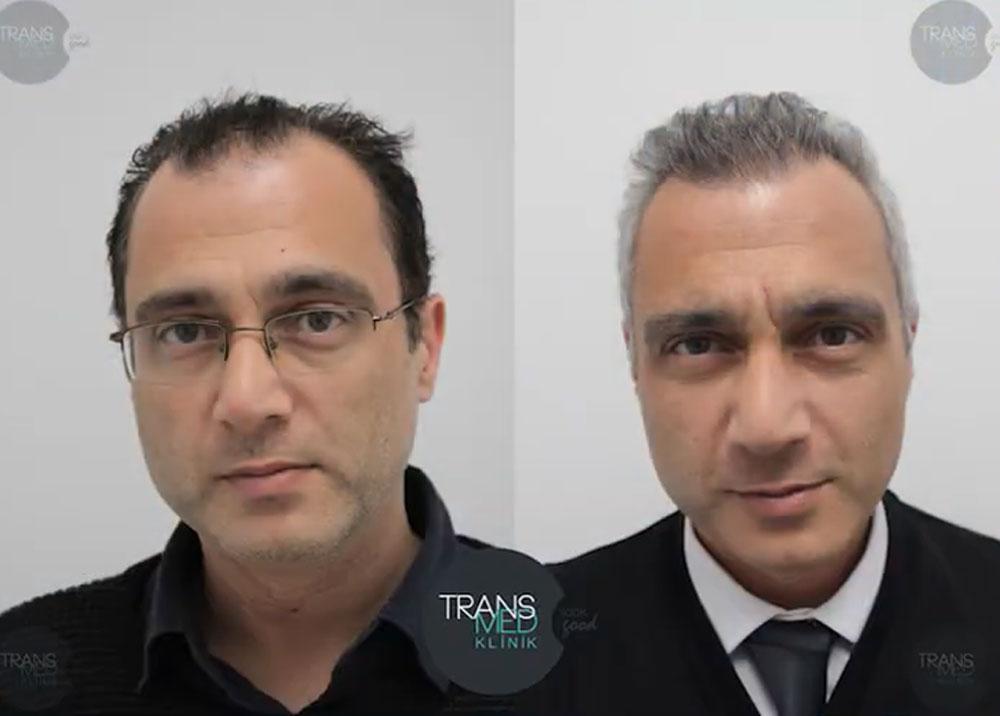 Transmed Saç Ekimi Sonuçları 1