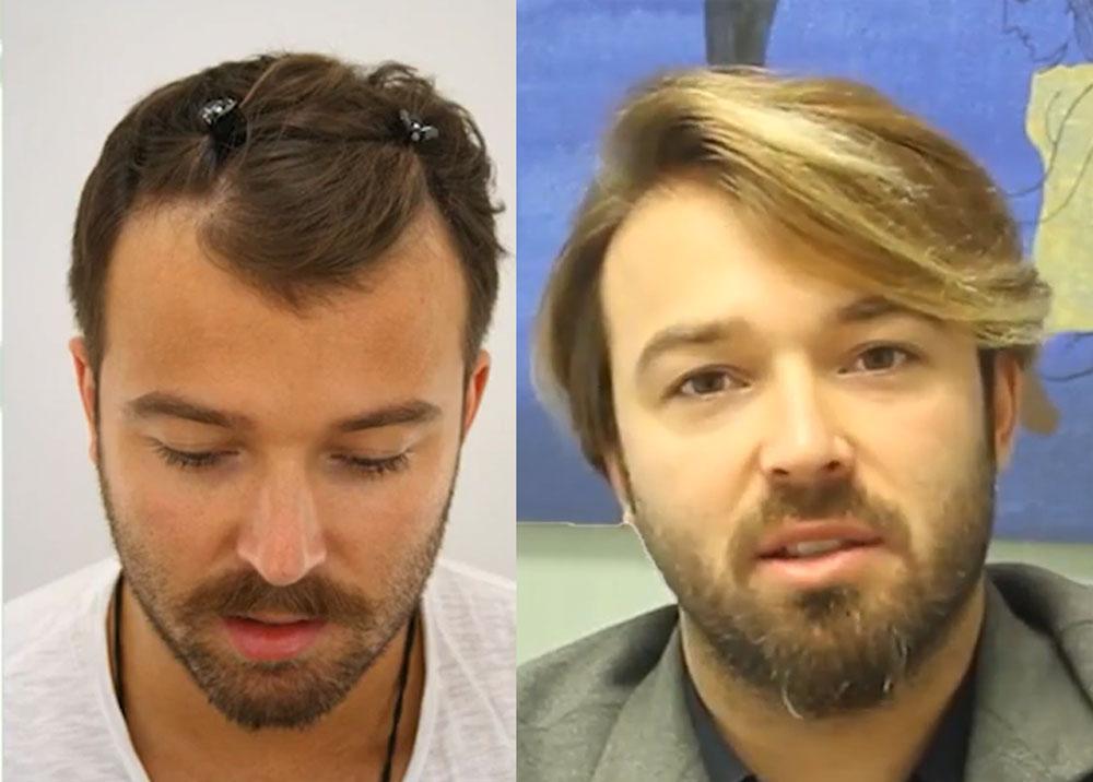 Transmed Saç Ekimi Sonuçları 3