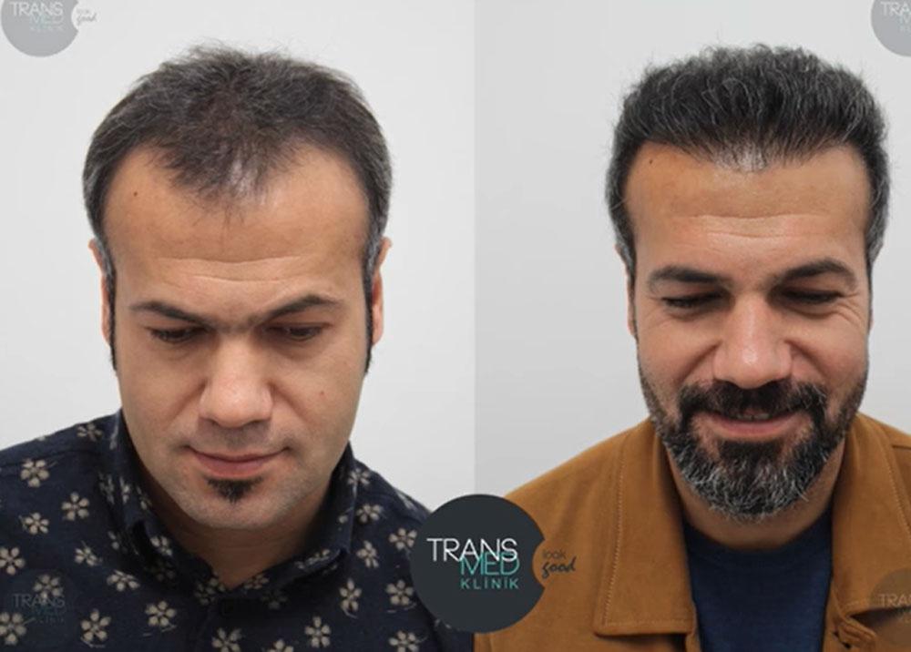 Transmed Saç Ekimi Sonuçları 4